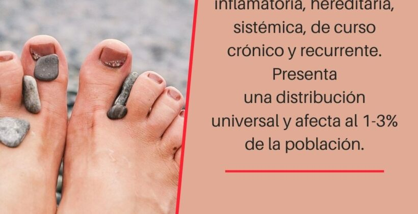 La psoriasis ungueal